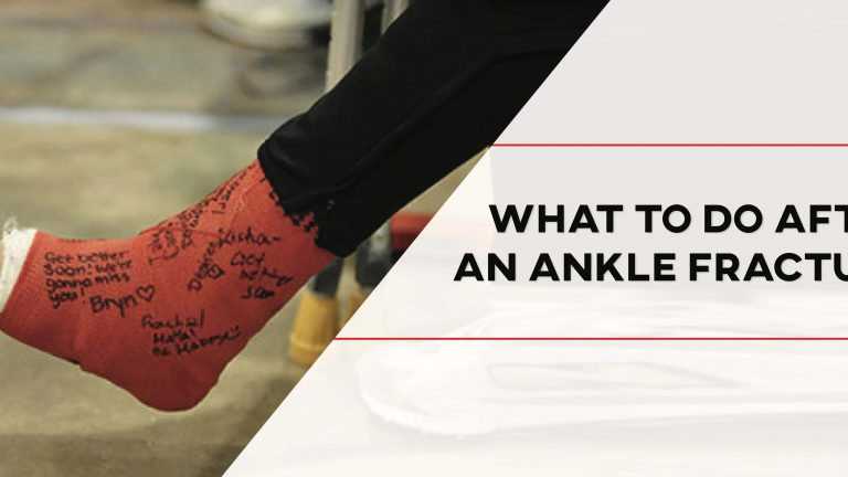 Do I Need Physical Therapy After an Ankle Fracture?