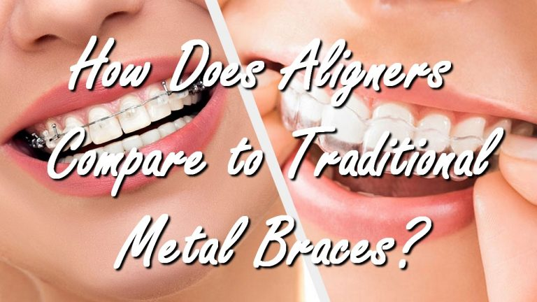 How Does Aligners Compare to Traditional Metal Braces?